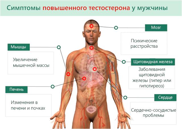 Повышенный уровень тестостерона у мужчин: основные симптомы и способы снижения
