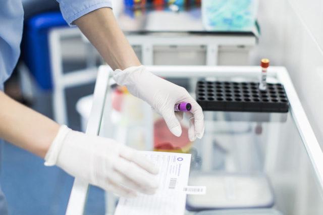 Щелочная фосфатаза - когда назначают анализ крови и о чем он может рассказать?