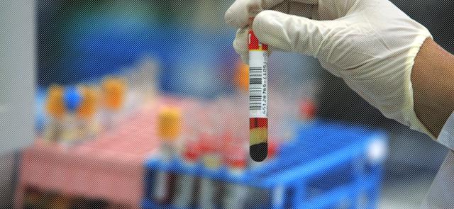 Анализ крови на туберкулез у детей и другие методы диагностики патологии