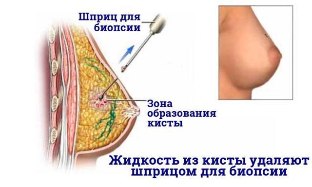 Как лечить кисту молочной железы: медикаментозное, народное и хирургическое лечение