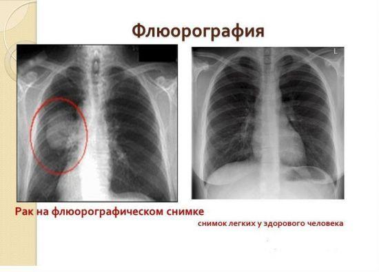 Флюорография: назначение, стоимость процедуры и преимущества метода