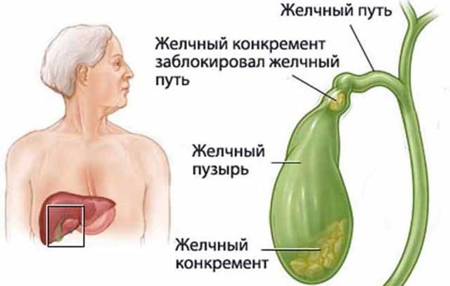 Водянка желчного пузыря: симптомы, лечение и возможные осложнения