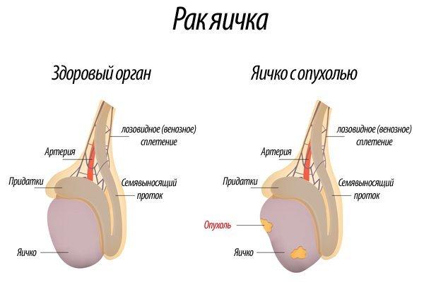 Рак яичек: симптомы, причины, диагностика и лечение