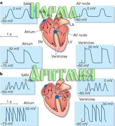 Почему возникает фибрилляция желудочков сердца и что делать во время приступа?