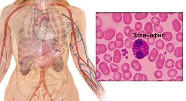 Функции эозинофилов в организме человека, нормативные показатели, повышение и понижения их содержания в крови