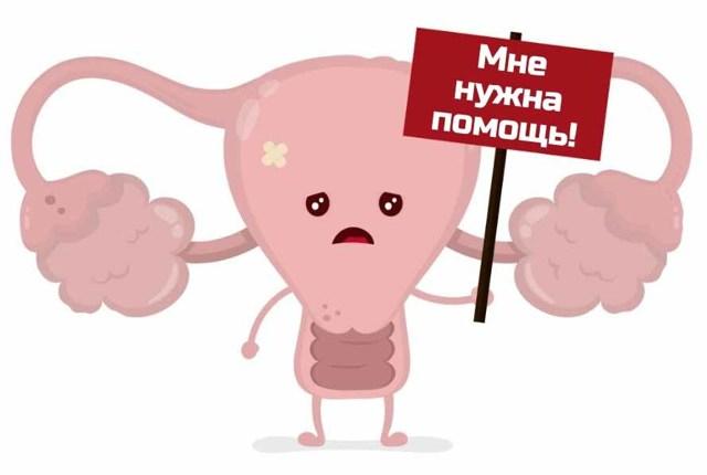 Обследование при синдроме поликистозных яичников (СПКЯ)