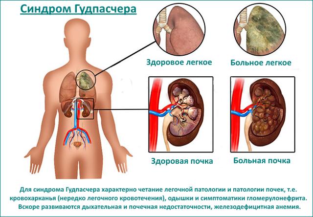 Диагностика и лечение синдрома Гудпасчера