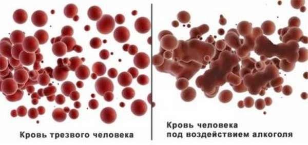 Общий анализ крови - тромбоциты: норма и причины отклонения от нормы
