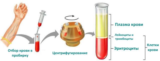 НСТ в анализе крови: диагностика и расшифровка результатов