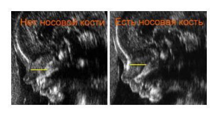 УЗИ на ранних срока беременности: опасно или вредно для плода?