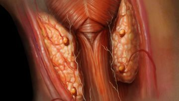 Гипопаратиреоз - диагностика и лечение недостатка паратгормона