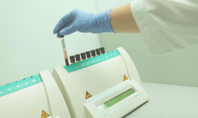 Анализ на эритропоэтин - зачем нужен, интерпретация результатов теста