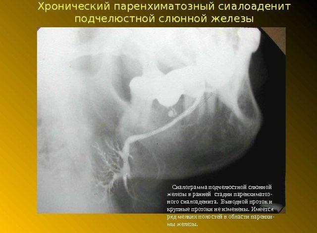 Поднижнечелюстная слюнная железа: строение, возможные заболевания и их лечение