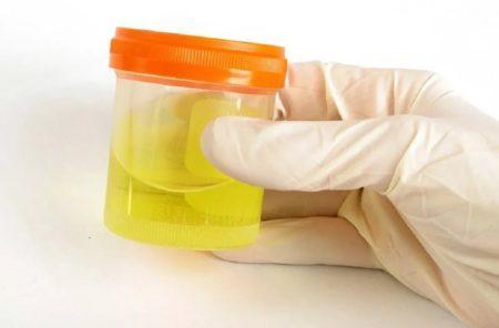 Как правильно собрать суточную мочу: правильная подготовка, сбор материала, хранение и расшифровка результатов исследования
