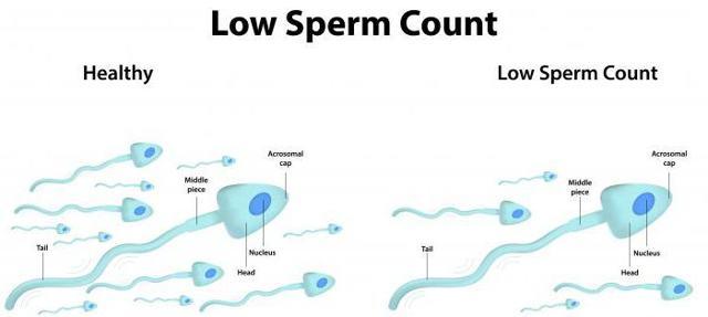 Спермограмма: подготовка, процедура, стоимость и преимущества анализа