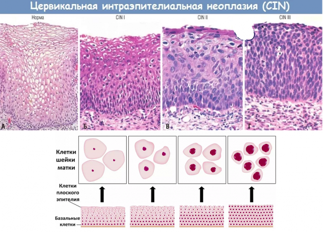 Что это - Биопсия шейки матки: виды, назначение, процедура биопсии, возможные осложнения и расшифровка результатов