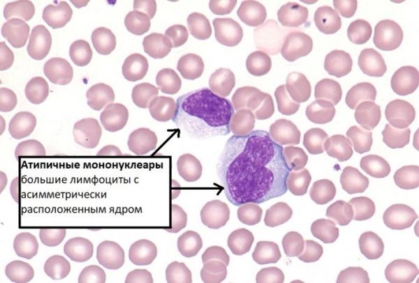 Атипичные мононуклеары в крови - значение, диагностика и расшифровка