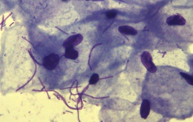 Мазок на флору - лейкоциты повышены: причины, возможны заболевания и лечение