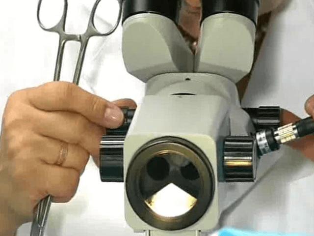 Правильная подготовка к кольпоскопии шейки матки и возможные результаты обследования