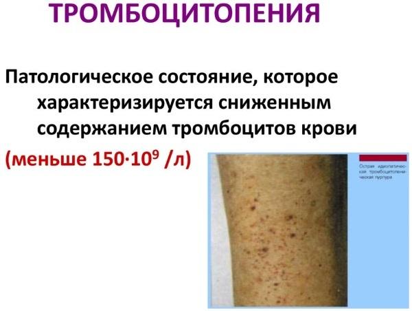Тромбоциты у ребенка: норма показателя, причины тромбоцитоза и тромбоцитопении