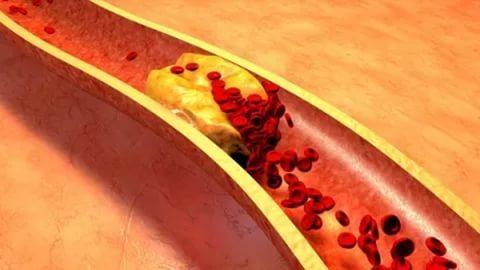Что такое холестерин в крови: виды, функции и диагностика