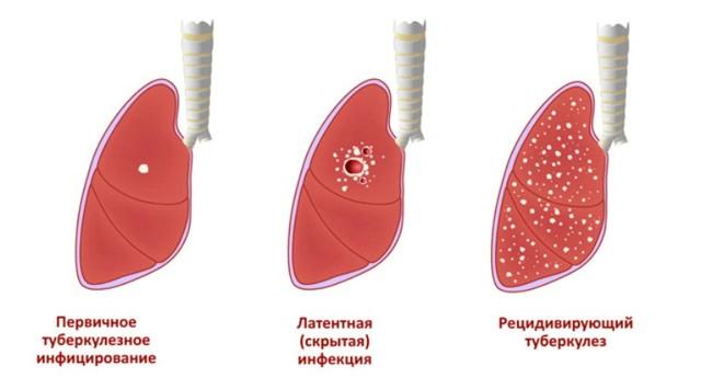 Причины повышения лимфоцитов в крови у ребенка и методы нормализации показателя