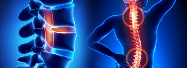 Отличия КТ от МРТ: подготовка, процедура, виды обследования и противопоказания