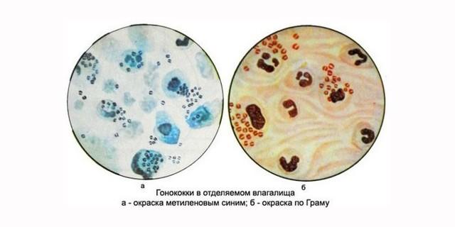 Инкубационный период гонореи, диагностика и особенности лечения болезни