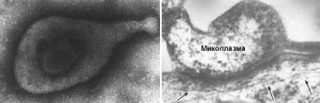 Что такое микоплазма гениталиум? - Пути заражения, симптомы, лечение и возможные последствия