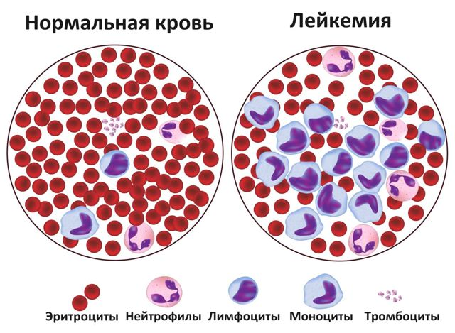 Повышенные лейкоциты в крови - что это означает и что делать?