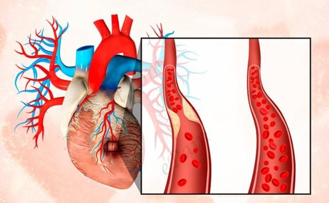 О чем говорит chol в биохимическом анализе крови