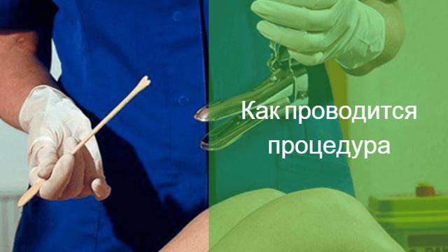 Гинекологический мазок: можно ли сдавать мазок во время месячных?