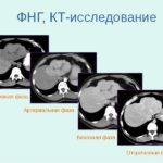 Почему возникает гиперплазия печени, чем она опасна и как ее лечить?