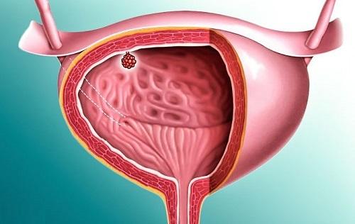 Рези после мочеиспускания у женщин - причины, лечение и возможные осложнения