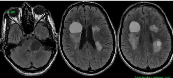 Киста головного мозга у ребенка: классификация, виды, лечение и прогноз