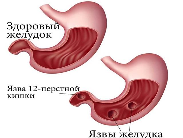 Что это такое - ГЭРБ: признаки, современные методы диагностики и лечение заболевания пищеварительной системы