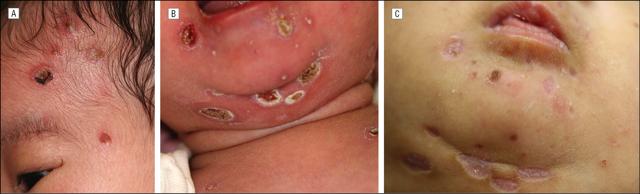 Что это такое цитомегаловирус: признаки, диагностика, терапия инфекции