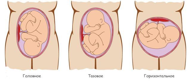 УЗИ третий триместр беременности: когда лучше делать и для чего оно нужно
