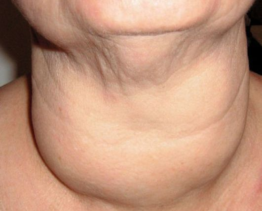 Щитовидная железа: нормальные размеры, роль и функции в организме