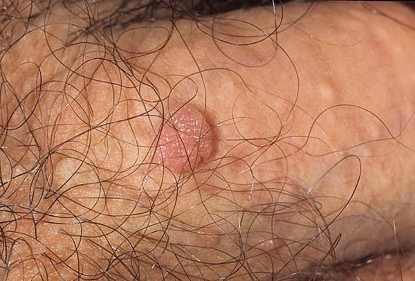 Папилломы на половом члене: признаки, способы лечения и возможные осложнения