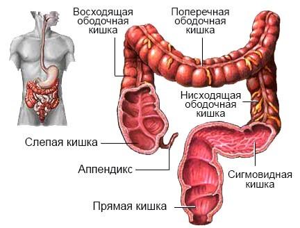 Что это такое колоректальный рак – причины, стадии, формы и способы лечения онкологии