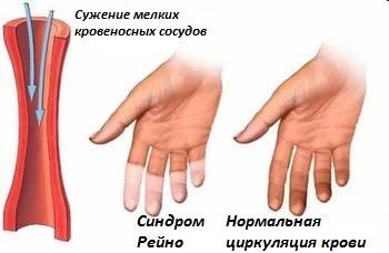 Анализ на криоглобулины -  на что указывает криоглобулинемия