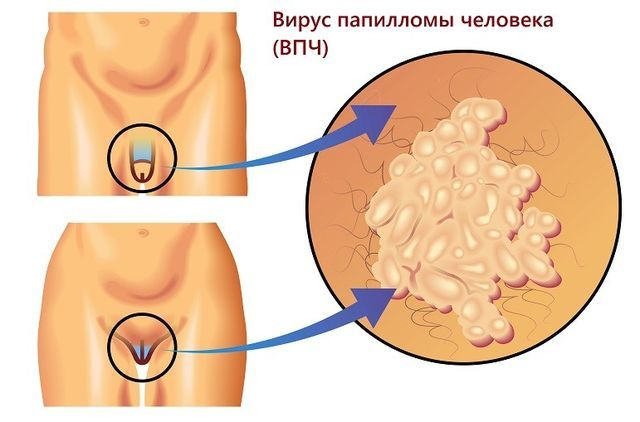 Генитальные папилломы: причины появления и методы лечения