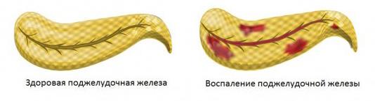 Диагноз и лечение заболеваний поджелудочной железы