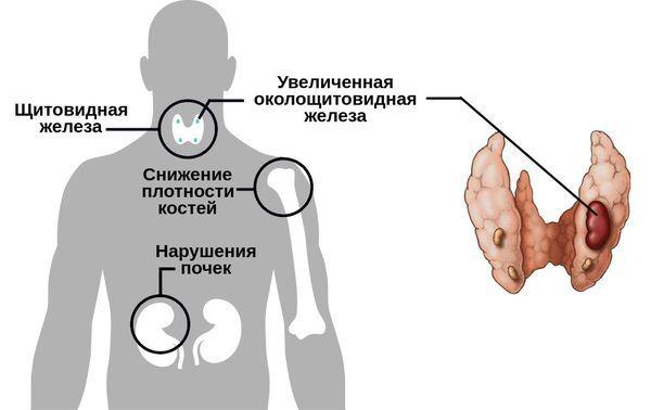 Гиперпаратиреоидизм (гиперпаратиреоз): причины симптомы диагностика и лечение