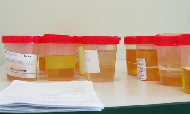 Подозрение на рак почки: методы лабораторной и лучевой диагностики, стадирование заболевания
