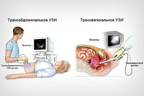 УЗИ шейки матки при беременности: подготовка, процедура, возможные результаты