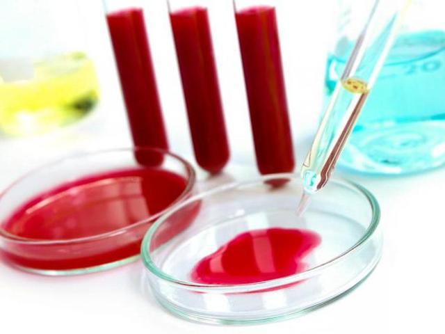 Общий и биохимический анализ крови у женщин: норма показателей и причины отклонения