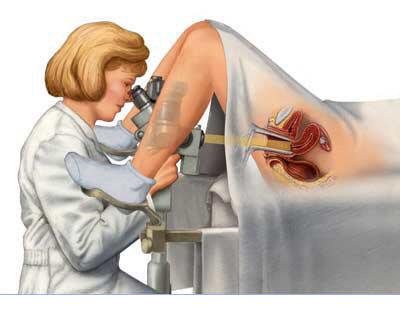 Подготовка к кольпоскопии: как подготовиться к исследованию, проведение процедуры