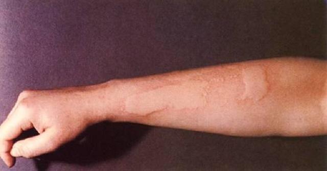 Анализы при аллергии на холод, лечение холодовой крапивницы